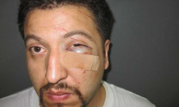 Car Wreck Leads Police to Domestic Abuse